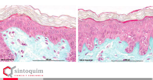 Silicio orgánico beneficios en la piel